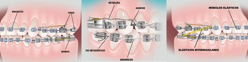 clinica-meu-sorriso-blog-dentes-aparelho